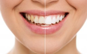 5 Best Teeth Whitening Products For Healthy Teeth 2019