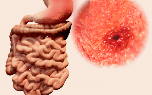 Stomach Ulcer: What Do You Need To Know?